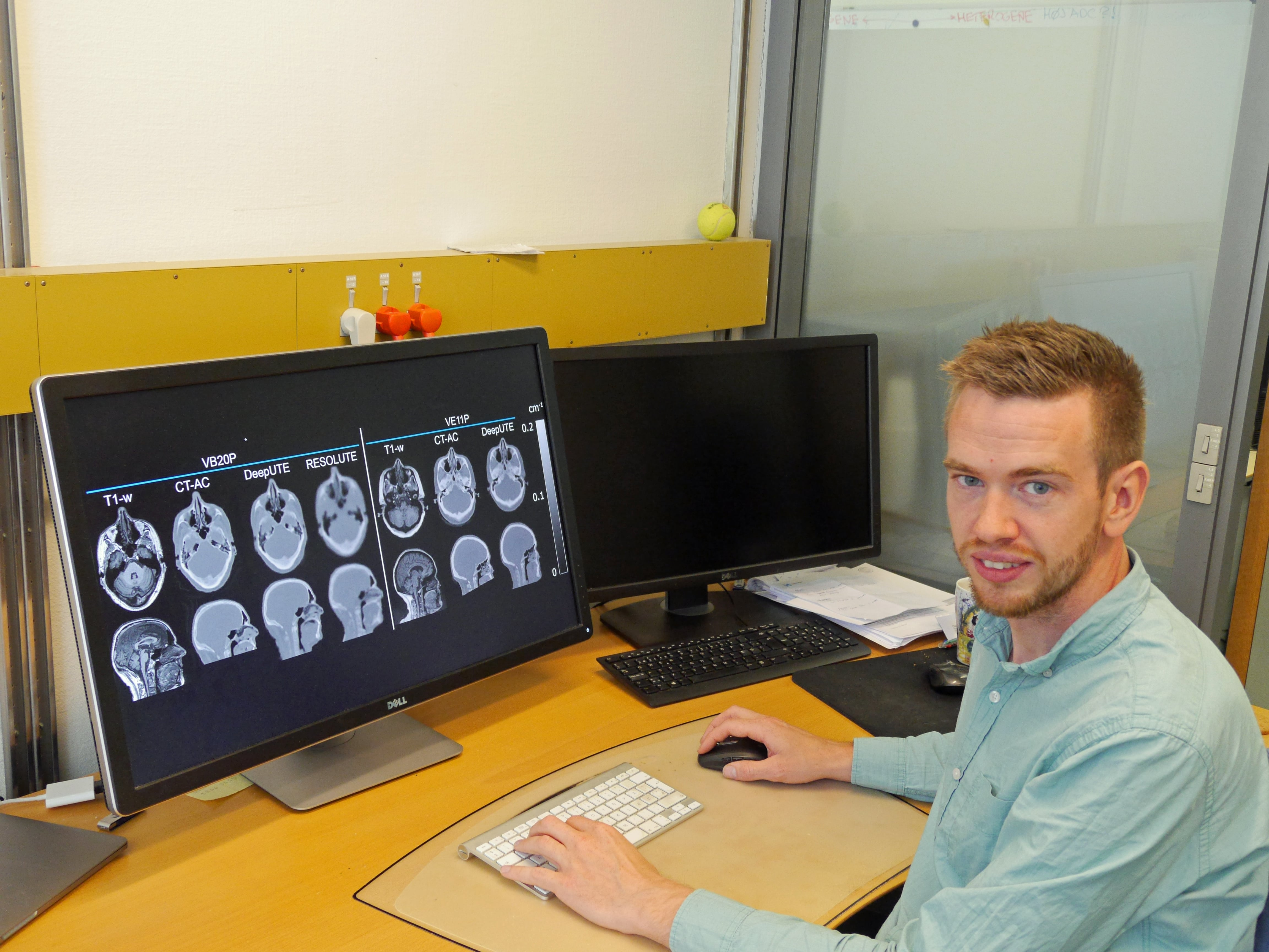 PET/MR, CT-scanning, Rigshospitalet, Claes Nøhr Ladefoged
